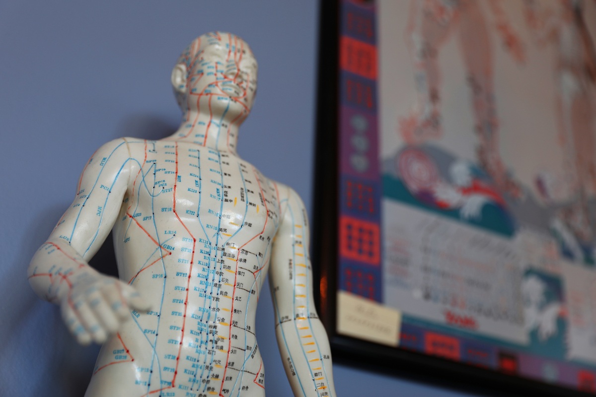 Community Acupuncture is Making Alternative Healthcare Affordable