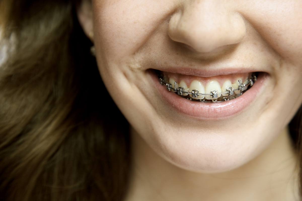 Young woman wearing dental braces.